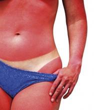 A legmegbízhatóbb megoldás bőröd számára!